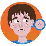 come prevenire l'acne